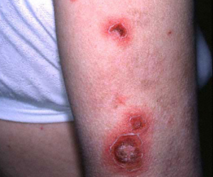 impetigo on arm