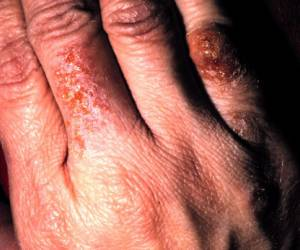 impetigo on hand