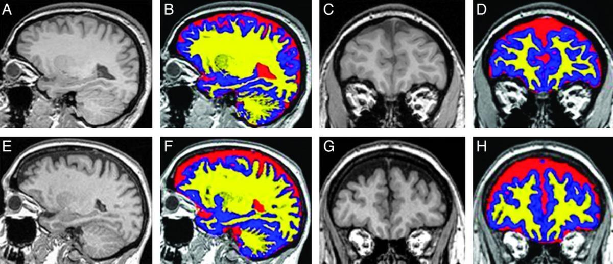 Idiopathic intracranial hypertension - eNetMD
